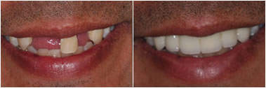 Dental Bridge Before and After Cary NC